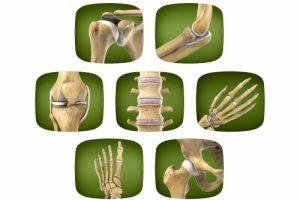 Stoffwechselstörungen der Knochen